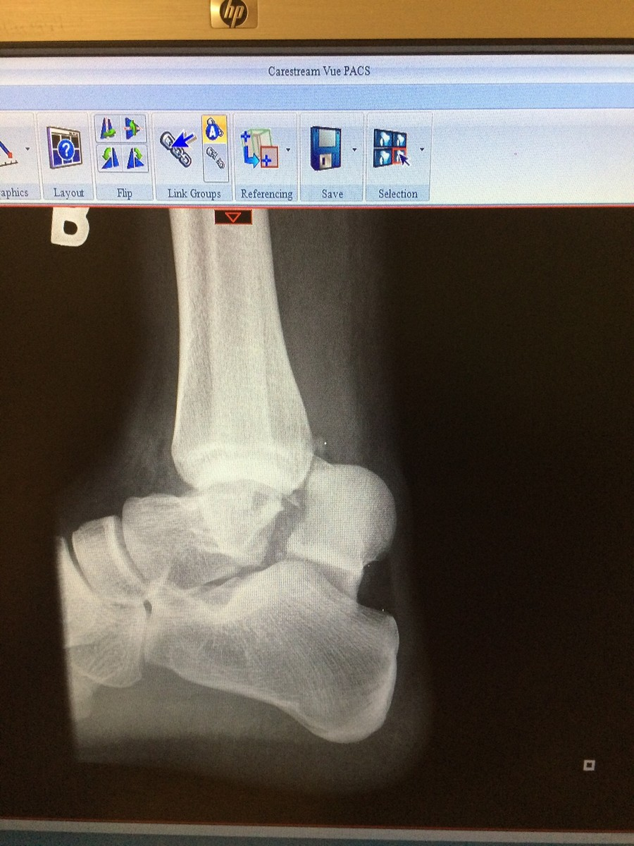 Talus, Tibia, and Medial Malleoulius - Moto-Related - Motocross