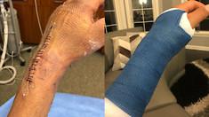 Injury Update: Jeremy Martin on his Surgery
